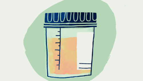 A graphic of a urine sample cup filled with urine.